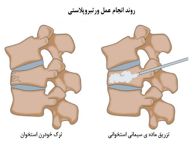 سیمان استخوانی