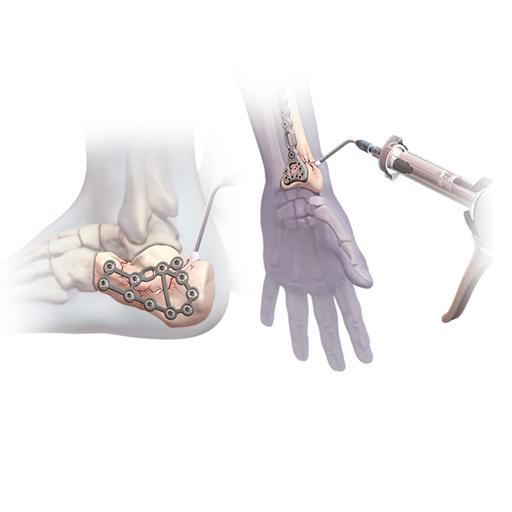 تزریق سیمان استخوانی